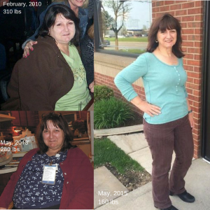 My 2-Year Anniversary Pic - 150 Pounds Gone!